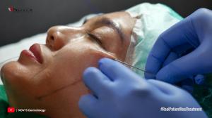 Tradlift Korean V-Shape NOVI'S Dermatology Clinic